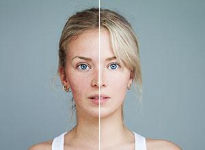 acne scar treatment hudson valley